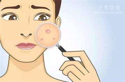 什么东西吃了,脸上容易长痘痘?