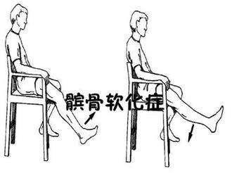 髌骨软化症怎样诊断?髌骨软化是什么症状呢?---千米饮食网