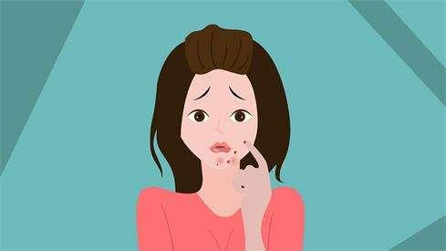 脸上长痤疮,最佳的治疗方法是什么?---千米饮食网