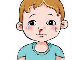 治疗鼻出血7种民间偏方,鼻出血偏方大全