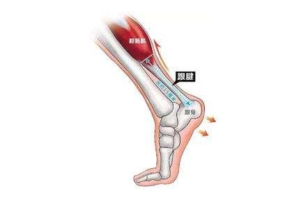 跟腱炎的症状是什么,饮食上需要注意什么?---千米饮食网
