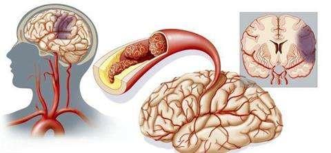 脑出血出院回家如何食疗保养?---千米饮食网(www.kmysw.com)
